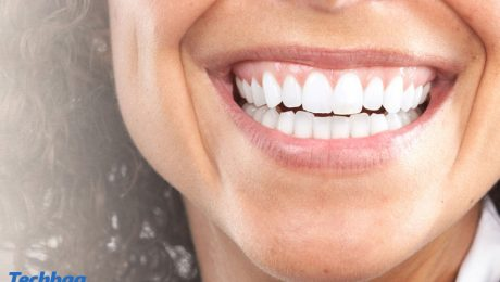 سفید کردن بیش از حد دندان