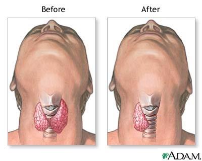 تصویر سمت چپ پیش از جراحی برداشتن بخشی از غده تیروئید و تصویر سمت راست پس از جراحی