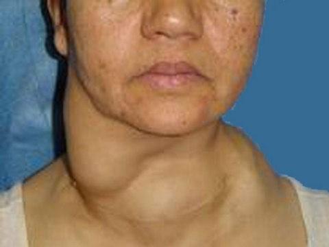 شایعترین علامت سرطان تیروئید (وجود توده یا ندول در گردن)