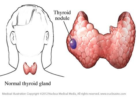 تصویر سمت چپ: غده تیروئید طبیعی، تصویر سمت راست: وجود ندول در تیروئید