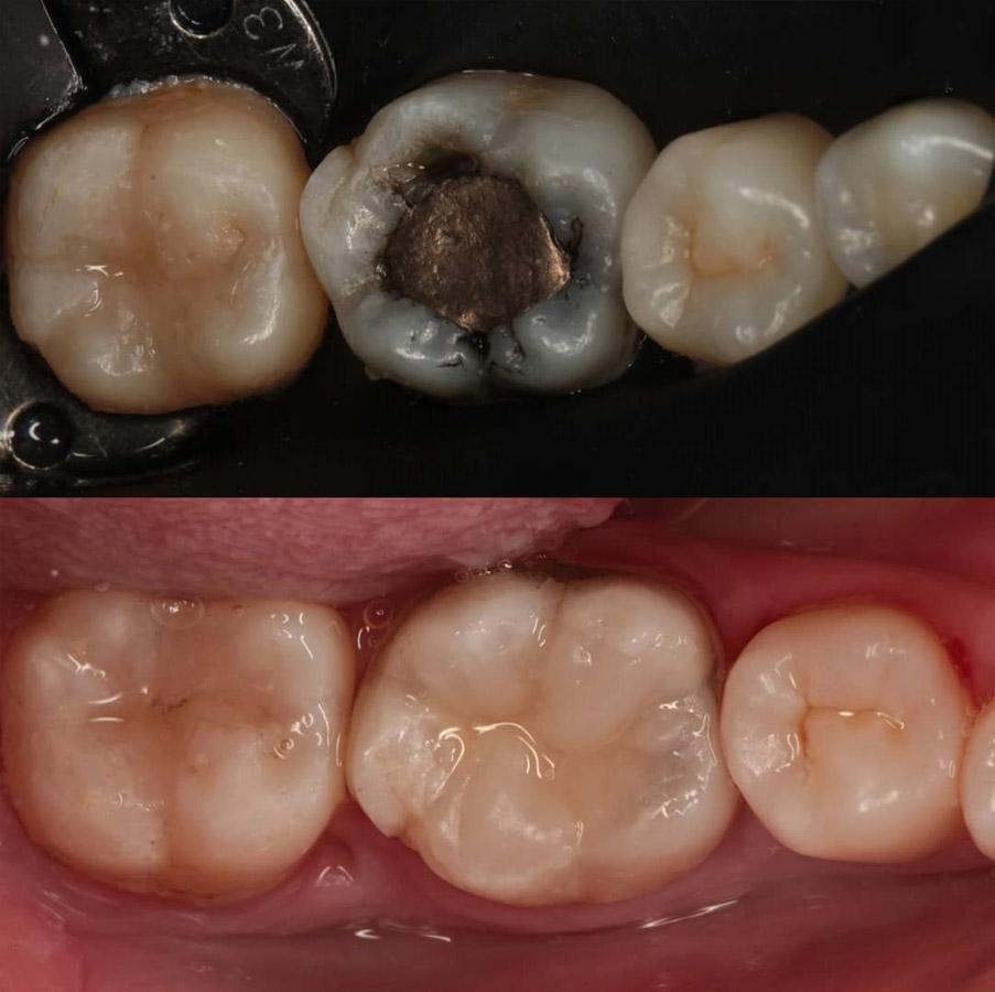 پر کردن دندان با کامپوزیت دندان